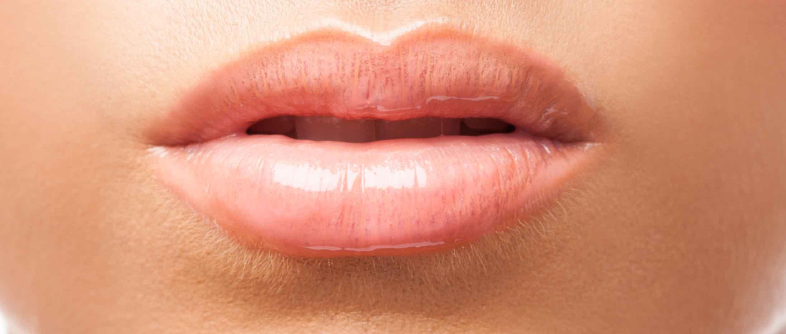 Bouche : Inflammations de la lèvre - dentiste la defense