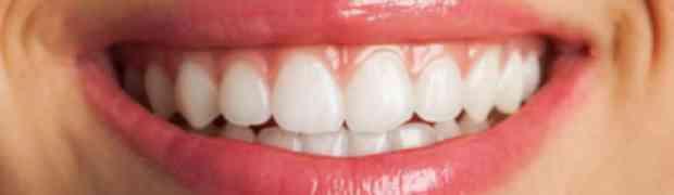 Lèvres, comprendre l'anatomie des lèvres en détail - dentiste la defense