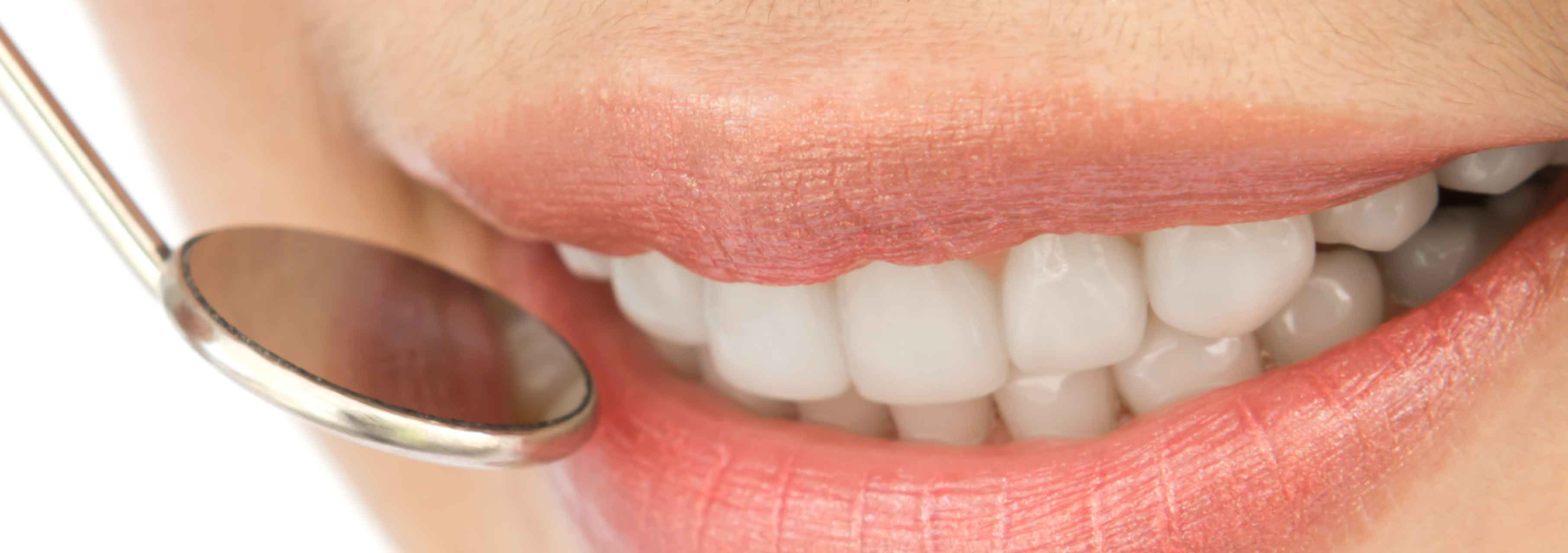 Bouche: grosseur anormale des lèvres