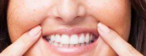 bouche-levre-dentiste