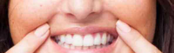 Bouche: Tumeurs limitées et circonscrites de la lèvre